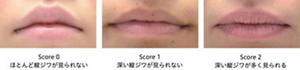 唇のあれへのアプローチリップケア製剤の水分閉塞性と、あれ改善の関係を初めて明らかに