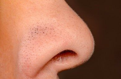 How to Get Rid of Blackheads on Your Nose for Good! | Bioré® Skincare