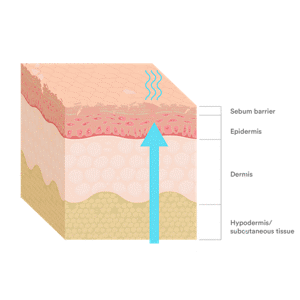 Severe Dry Skin Illustration